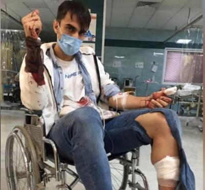 سارقین مشهدی بازیکن پدیده را با قمه زدند؛تصویر خون آلود سینا زامهران